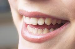 3) ペーストを使って歯の表面を磨き、ツルツルにする事で着色しにくくします